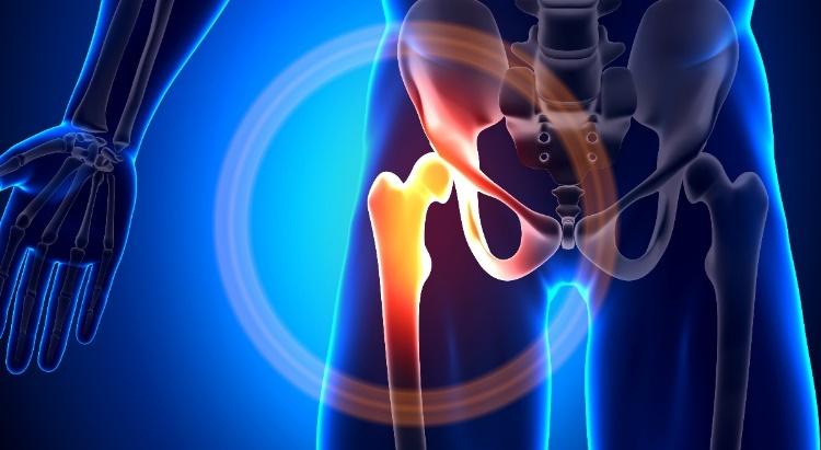 futó fájdalom a csípőízületben